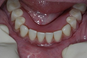 3-overdenture-clips-on-top-of-implants1-300x199