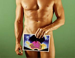 Доброкачественная гиперплазия предстательной железы, сокращенно ДГПЖ