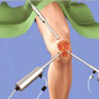 Артроскопия: понятие, цель и последовательность реабилитации
