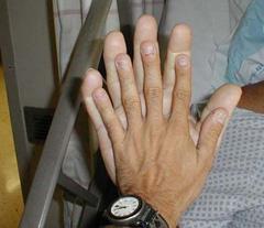 Акромегалия, Здраво - медицинский портал о здоровье