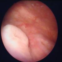 Цистоскопическая картина лейкоплакии мочевого пузыря