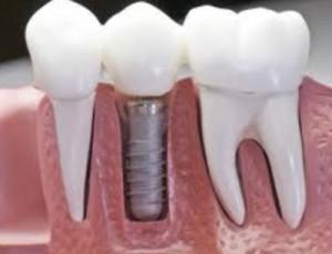 ctl_implants-300x230