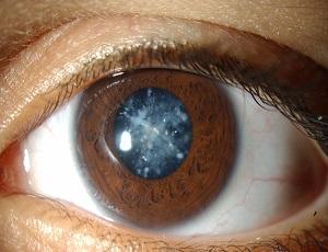 Глазные-капли-Калия-йодид-помогают-не-допустить-распространение-катаракты