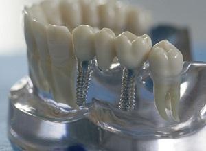 implant-istanbul2