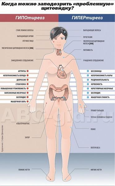 Диета при гипотиреозе щитовидки