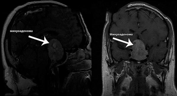 МРТ микроаденомы