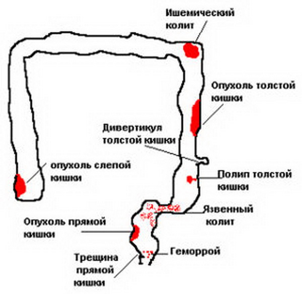 на фото кишечник с различными причинами кровотечений