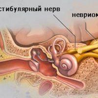 Невринома головного мозга