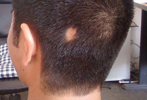 ochagovaya-alopeciya-foto-01