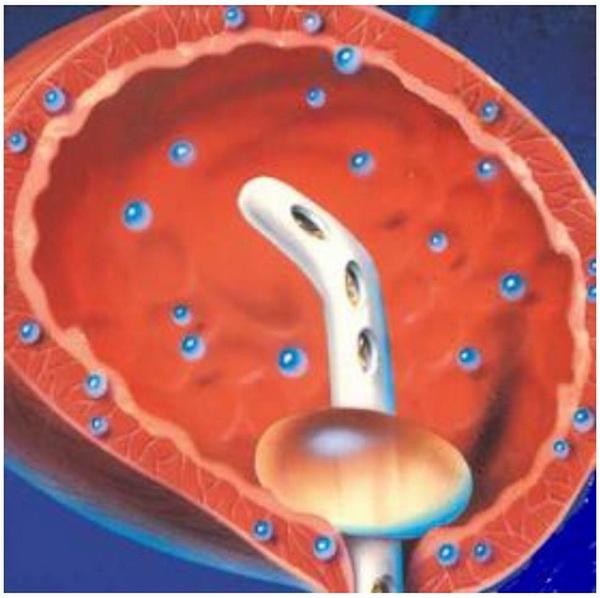Орошение мочевого пузыря лечебным раствором
