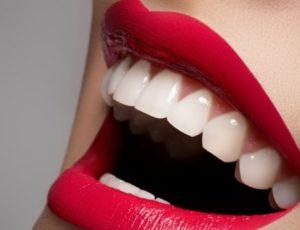 otbelivanie-zubov-naturalnymi-sredstvami-300x230