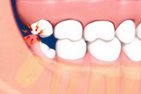 Показано, что воспаление возникает при прорезывании зуба