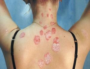 simptomy-psoriaza-klinicheskie-formy-varianty_1