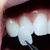 Виниры на зубы - это специальные накладки