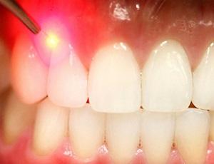 vosstanovlenie-povrezhdennogo-zuba_2